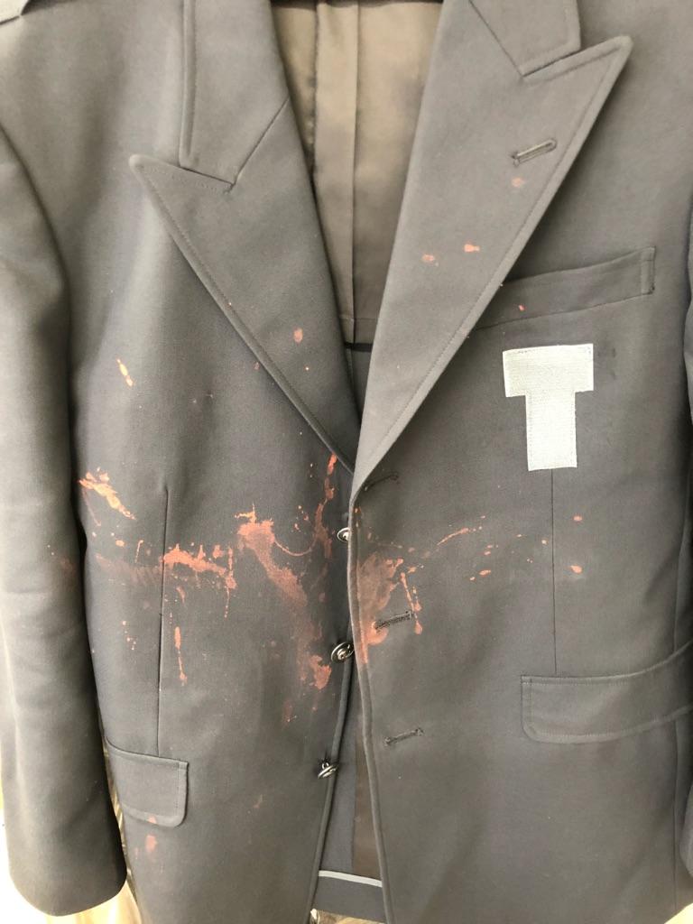 ジャケットについた蛍光染料
